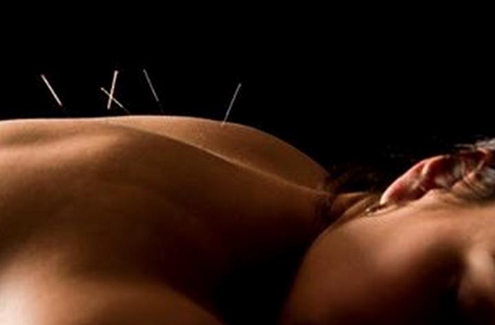 instagram dmacpuntura acupuncture